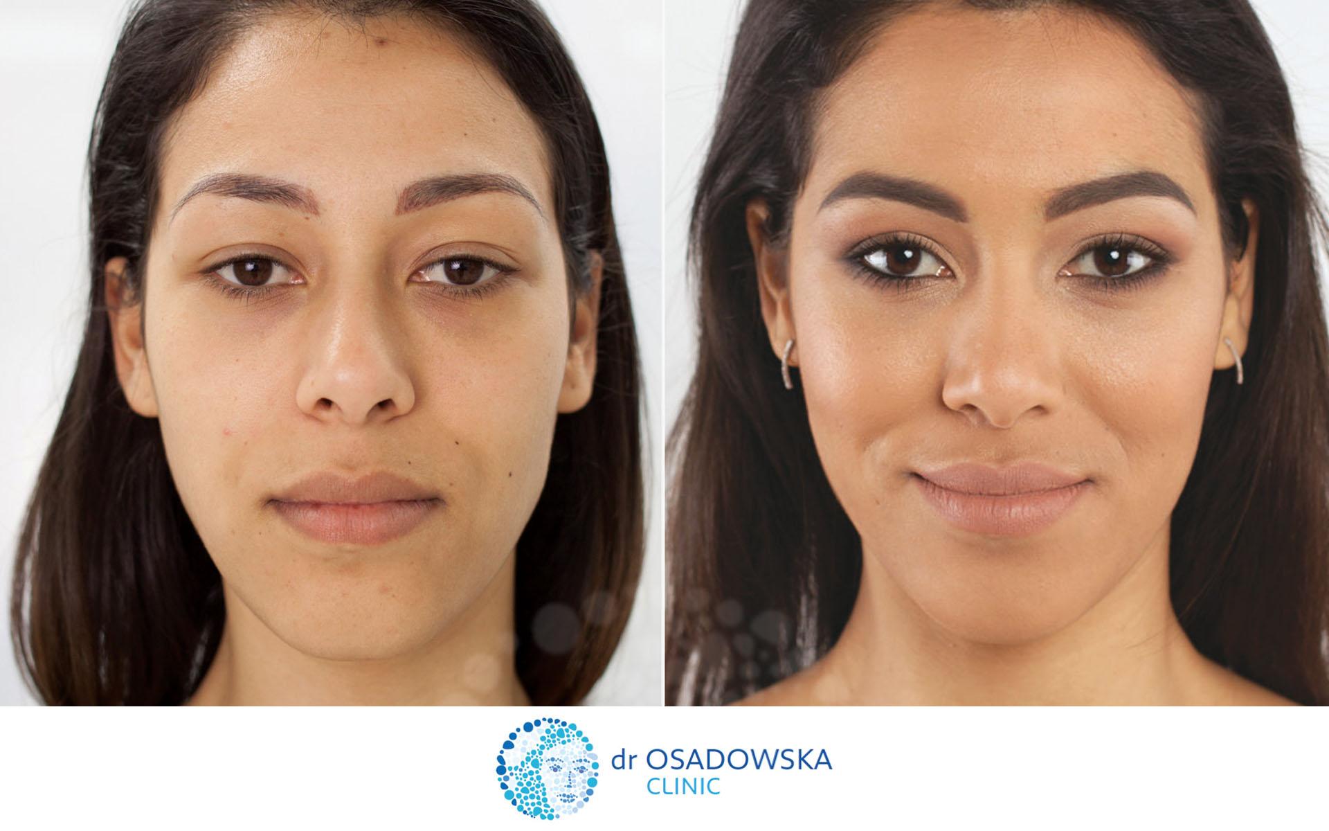 c2c8be75b61d Blefaroplastyka laserowa - chirurgiczna korekcja powiek górnych. Efekty  zdjęcie 6 miesięcy po zabiegu