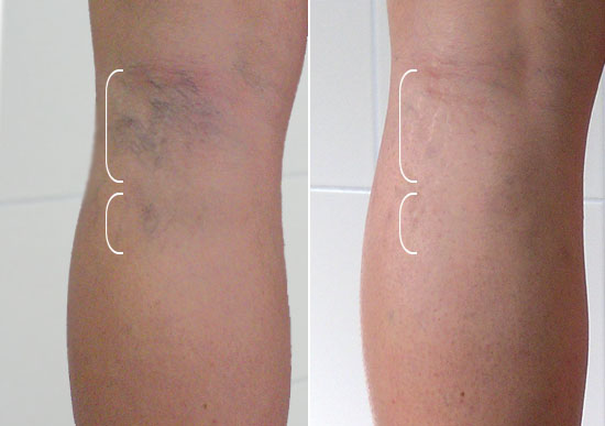 zylaki konczyn dolnych metody usuwania tatuażu